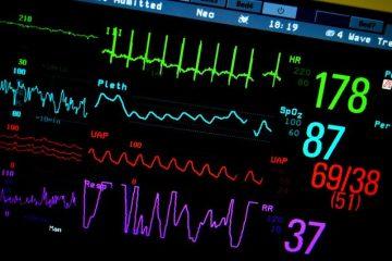 אבחון ראשוני למשבר יחסי העבודה במערכת הרפואה הציבורית בישראל מלמד שהמערכת חולה